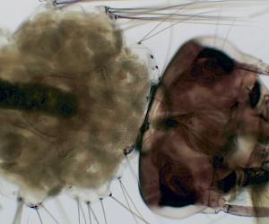 蚊子幼虫装片
