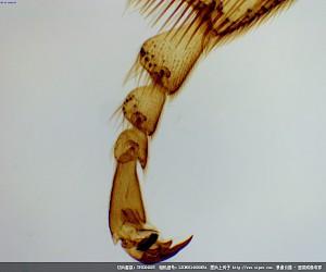 蜜蜂第三对胸足装片